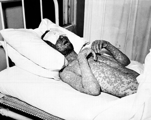 man in bed with smallpox