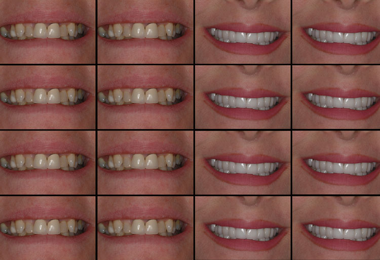 Teeth - Before and After