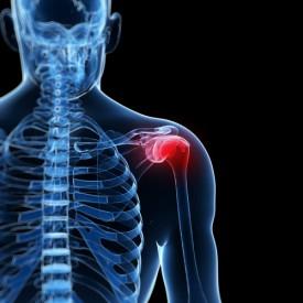 Photo_of_injured_shoulder