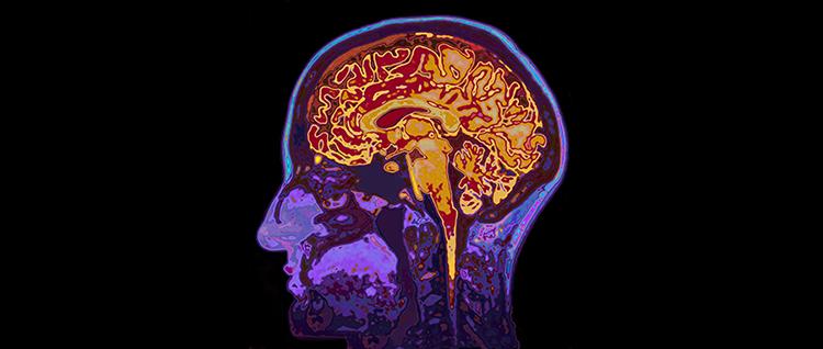 MRI scan of a brain.